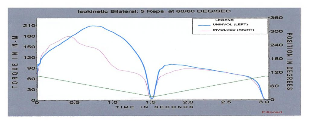 biodex test