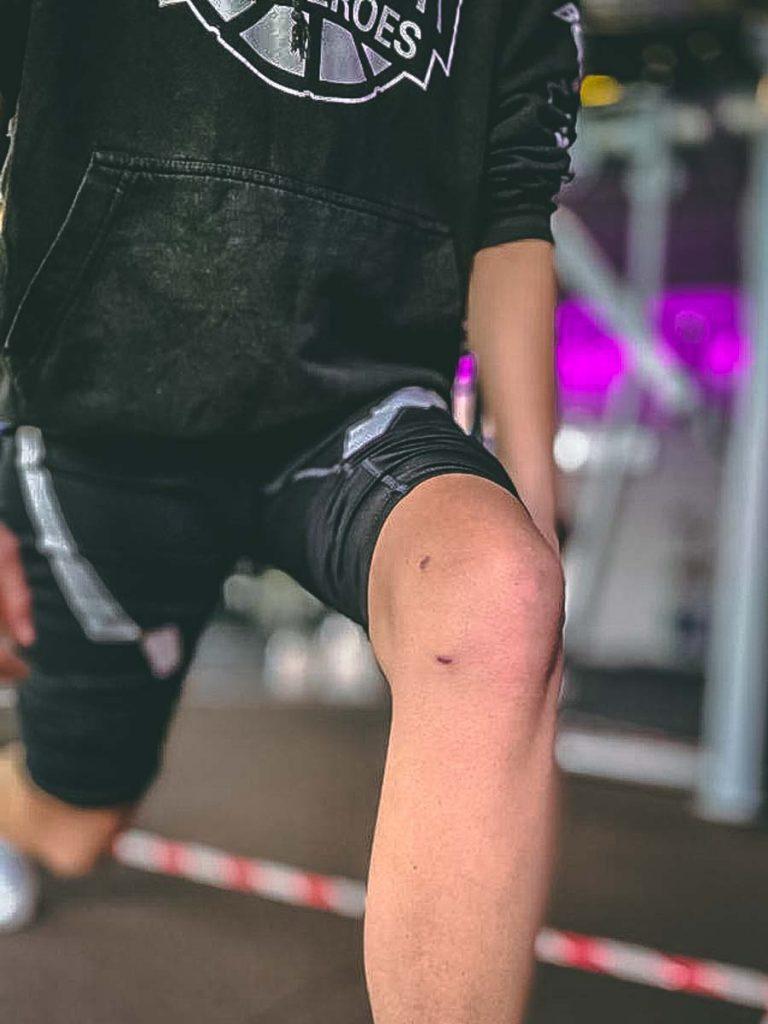 meniscus gescheurd